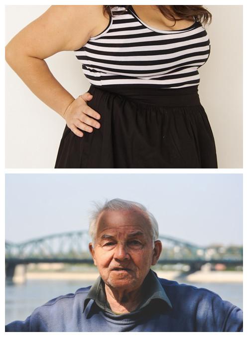 # 過度肥胖DNA VS 禿頂DNA