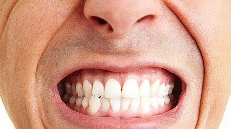 5. 經常咬牙或者睡覺時候磨牙
