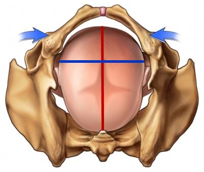 以小嬰兒的頭來看, 從額頭到後腦勺(紅線),比起頭從左到右(藍線)還要長!