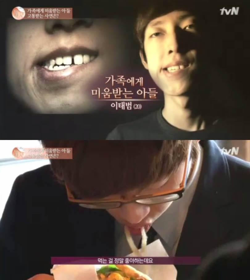 韓國有一個整型節目,已經做到第五季,就知道有多受歡迎! 這次的案例請看嘴部!