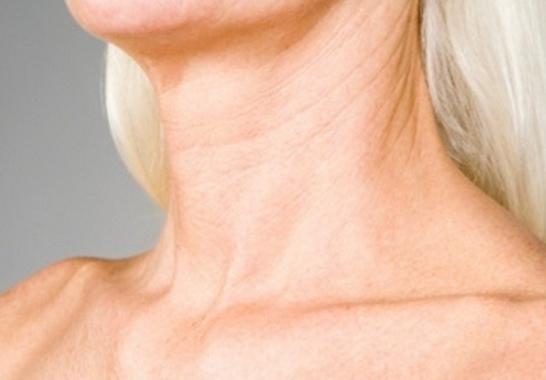 因為脖子的皮膚細膩,就很容易生長皺紋,一旦脖子長出皺紋了卻不容易消失!!!所以預防是最重要的事情了~