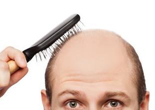 看著一點一點變光的頭髮,甚至有時候會想「還不如直接剃光頭呢? 」
