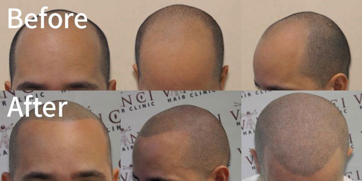 一直被髮際線困擾的英國人民,最近發明了「頭皮色素沉積術 」,簡單說就是「頭皮紋身 」。