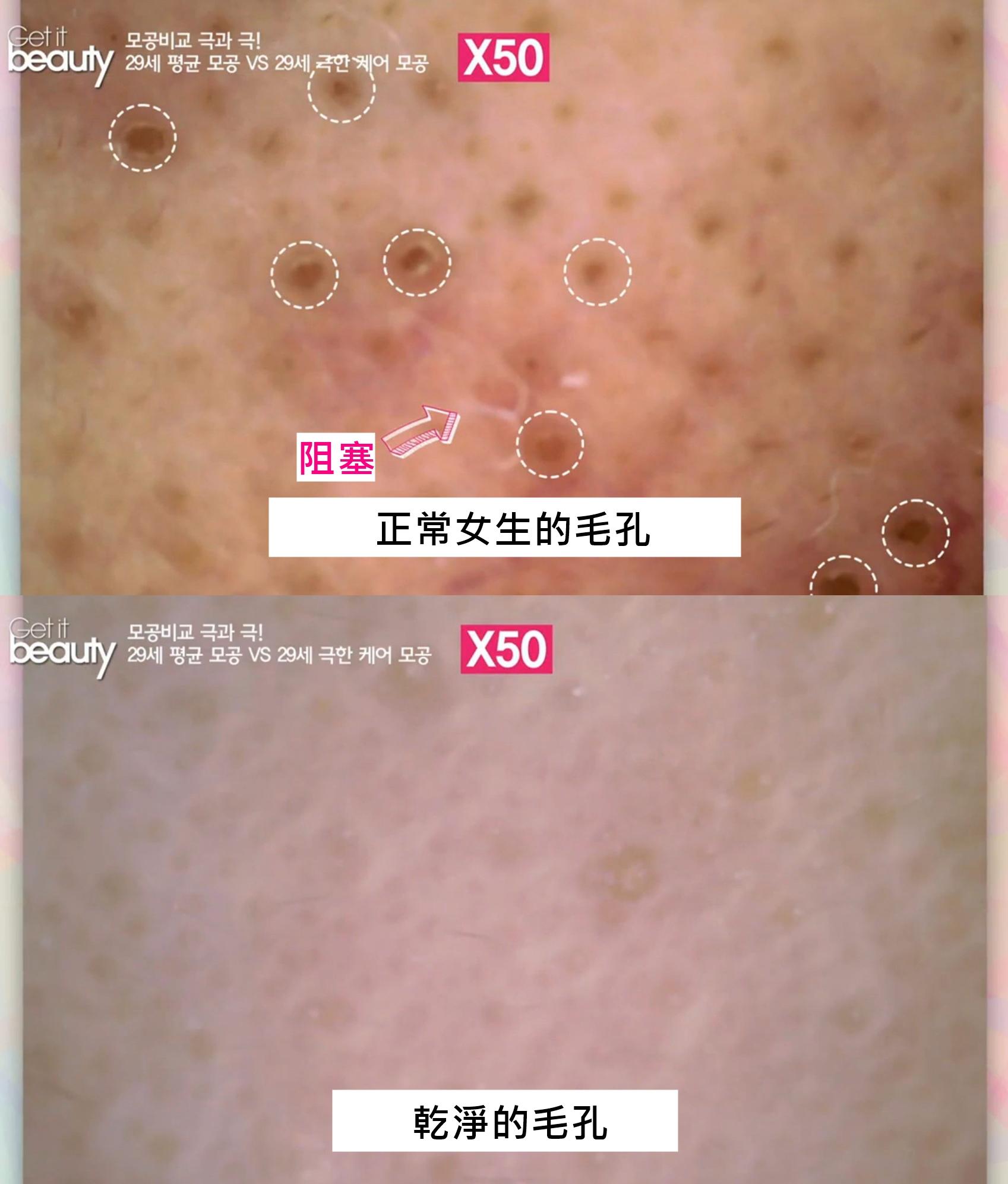 近看果然超級嚇人啊~~~ 一般女生的毛孔有黑色素與髒汙阻塞,但是另一位幾乎沒有毛孔,就算有也是非常乾淨的狀況,連主持人都驚呼的完美肌膚!