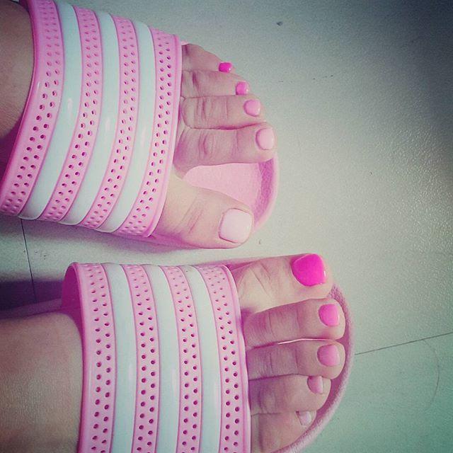 韓國網友說的就是腳啦!想必大家都知道,韓國女偶像們必須長期穿著高跟鞋大跳熱舞,她們的腳通常都是傷痕累累,練舞時也會留下許多疤痕在美麗的腿和膝蓋上(哭)