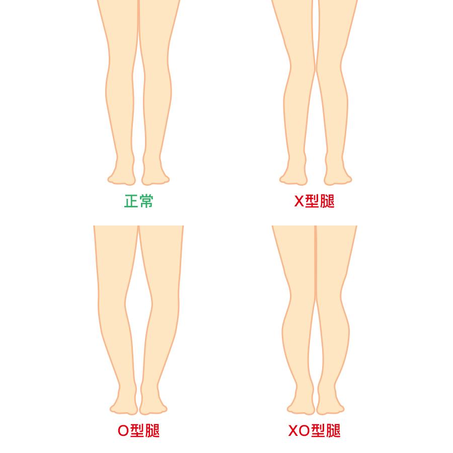 首先先了解一下各個腿型~ 看看自己是不是中了O型腿和X型腿了呢?